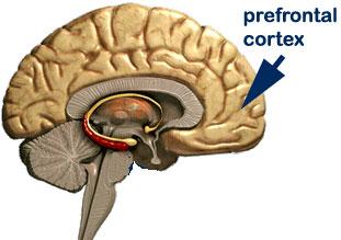 IQ-prefrontal