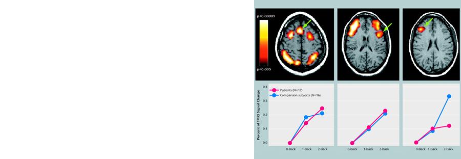 Slide 3 - Neuroplasticity Change